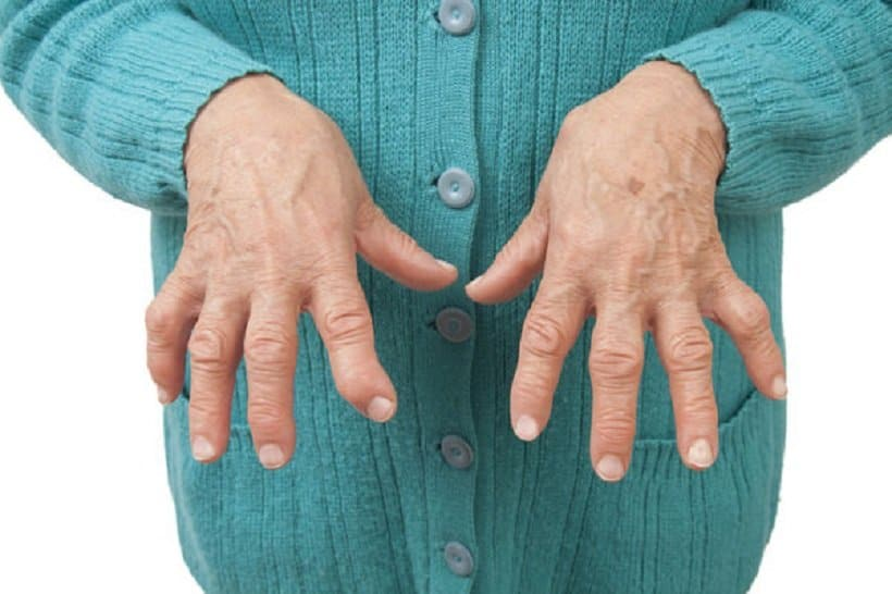Cannabis Benefits for Arthritis