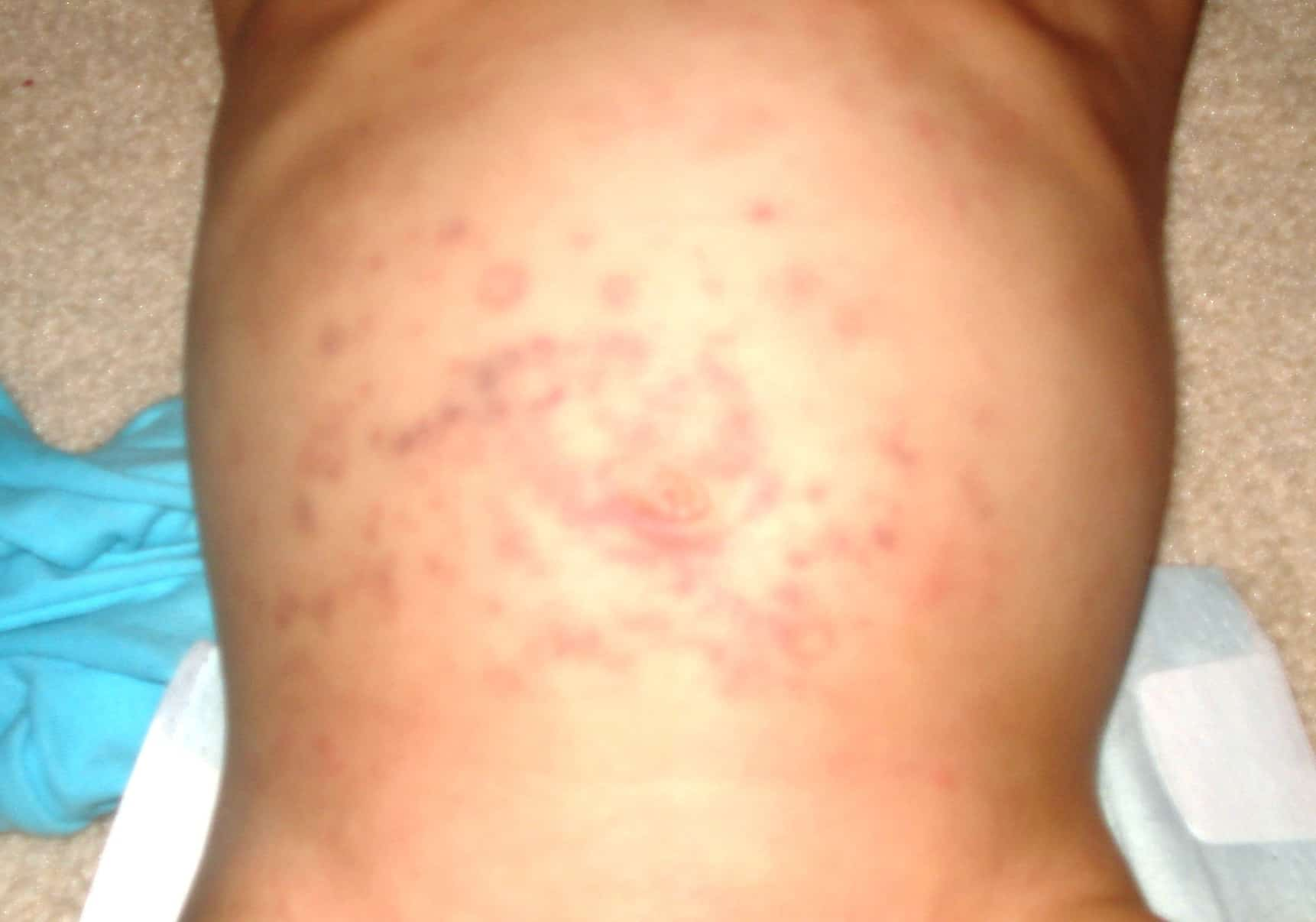 Was CBD Wrongfully Linked to Steven Johnson Syndrome? Rash on a stomach.